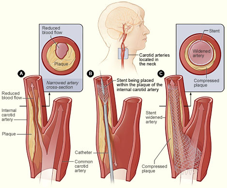 Carotid Artery Angioplasty and Stenting