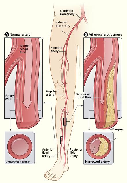 vascular endovascular surgery angiography rh vascular surgery ucsf edu Blood Vessels in Legs Diagram Lower Leg Vascular