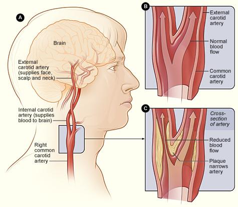Vascular & Endovascular Surgery - Carotid Ultrasound