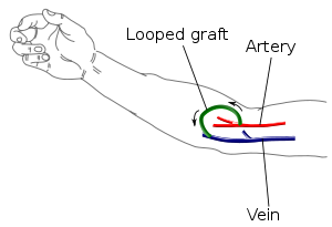 300px-Arteriovenous_graft_(en)_svg