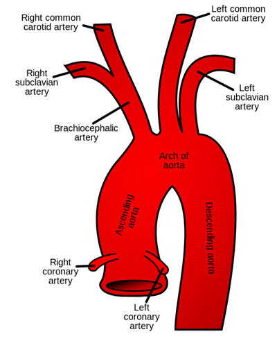 vascular & endovascular surgery - aortic arch disease, Sphenoid