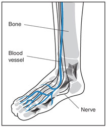 causes of neuropathy in feet and legs